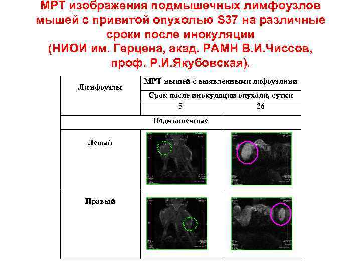 МРТ изображения подмышечных лимфоузлов мышей с привитой опухолью S 37 на различные сроки после