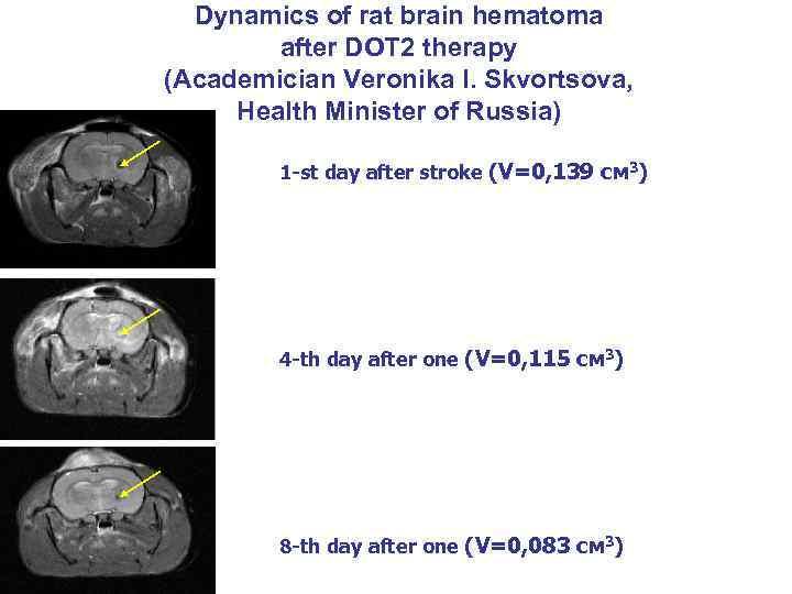 Dynamics of rat brain hematoma after DOT 2 therapy (Academician Veronika I. Skvortsova, Health