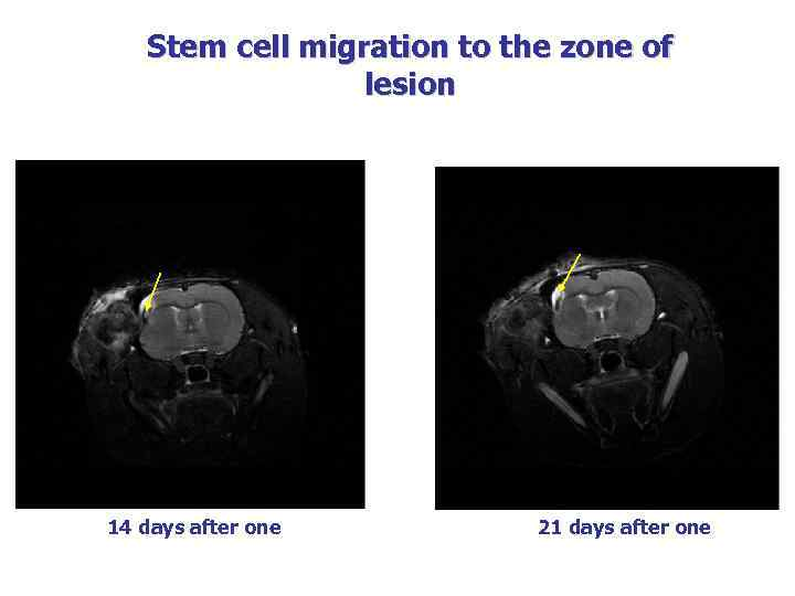 Stem cell migration to the zone of lesion 14 days after one 21 days