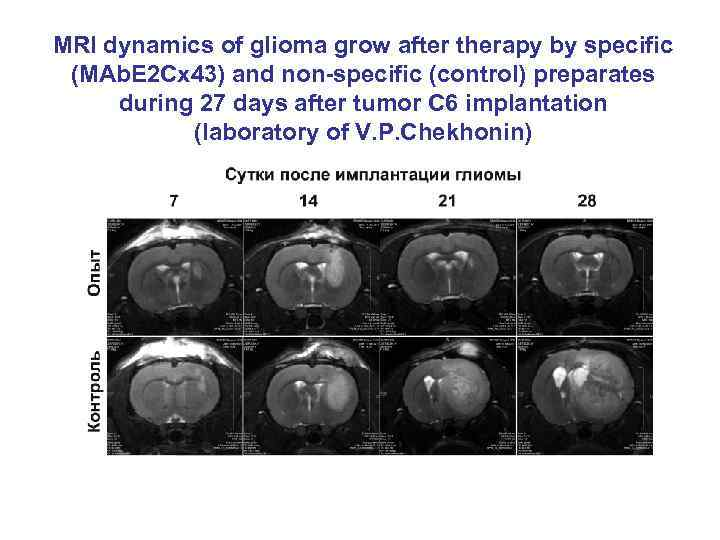 MRI dynamics of glioma grow after therapy by specific (MAb. E 2 Cx 43)