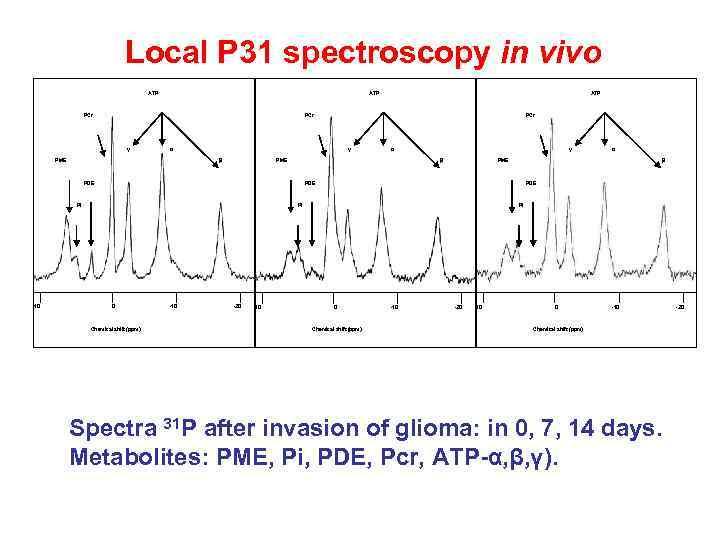 Local P 31 spectroscopy in vivo ATP PCr PCr γ α PME γ β