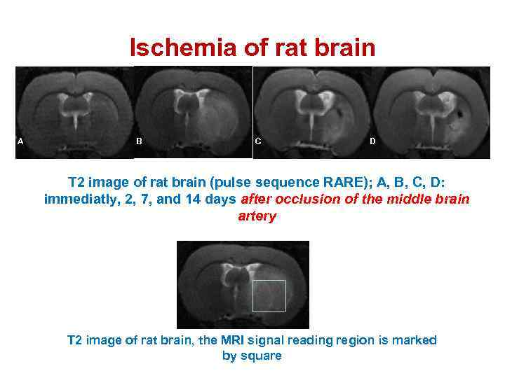 Ischemia of rat brain A B C D T 2 image of rat brain