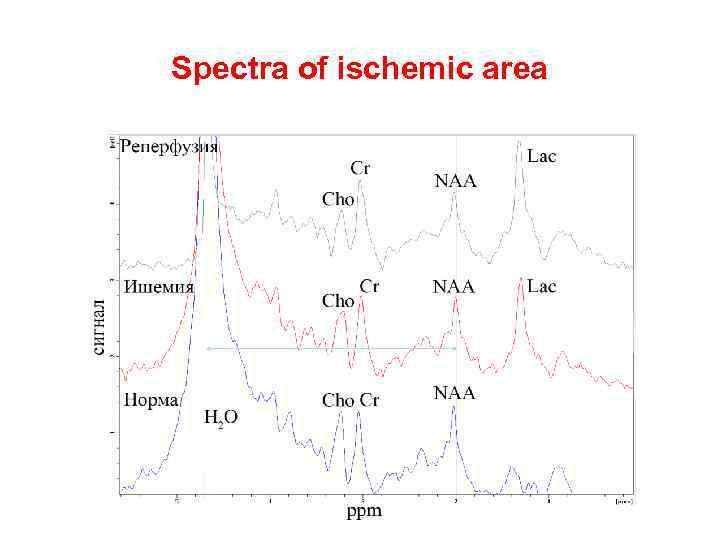Spectra of ischemic area