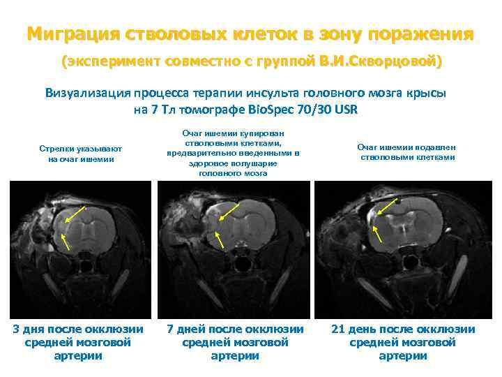 Миграция стволовых клеток в зону поражения (эксперимент совместно с группой В. И. Скворцовой) Визуализация