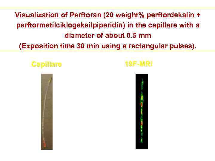 Visualization of Perftoran (20 weight% perftordekalin + perftormetilciklogeksilpiperidin) in the capillare with a diameter