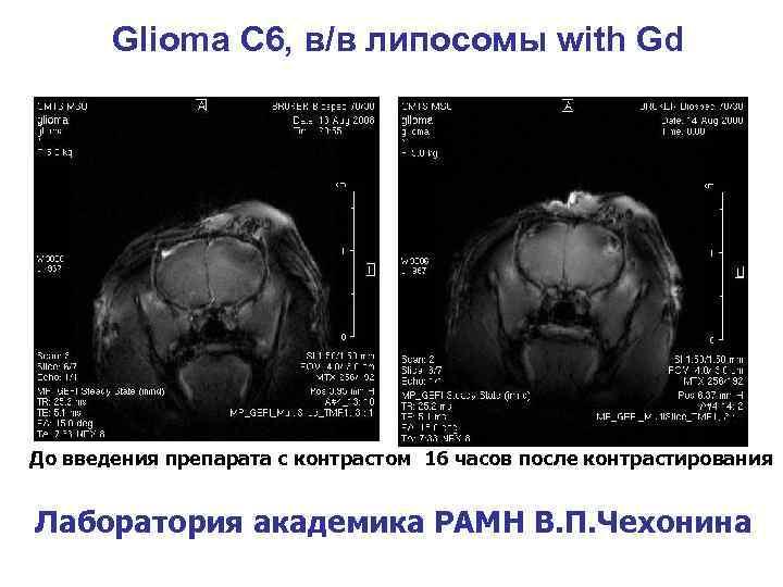 Glioma С 6, в/в липосомы with Gd До введения препарата с контрастом 16 часов