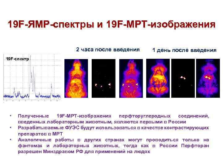 19 F-ЯМР-спектры и 19 F-МРТ-изображения 2 часа после введения 19 F-спектр 1 H 19
