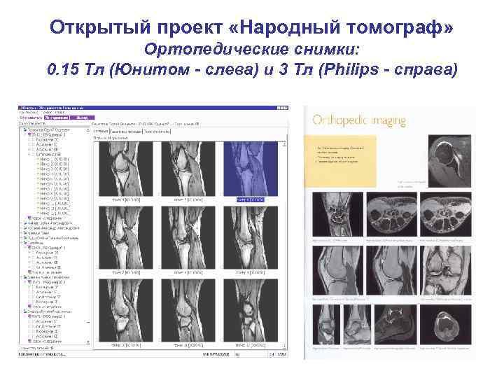 Открытый проект «Народный томограф» Ортопедические снимки: 0. 15 Тл (Юнитом - слева) и 3