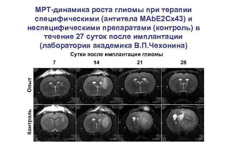 МРТ-динамика роста глиомы при терапии специфическими (антитела MAb. E 2 Cx 43) и неспецифическими