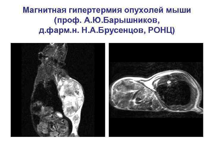 Магнитная гипертермия опухолей мыши (проф. А. Ю. Барышников, д. фарм. н. Н. А. Брусенцов,