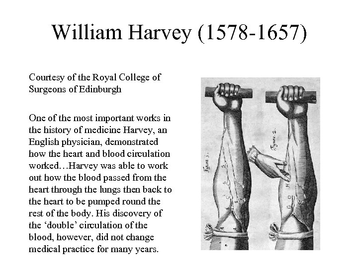 William Harvey (1578 -1657) Courtesy of the Royal College of Surgeons of Edinburgh One