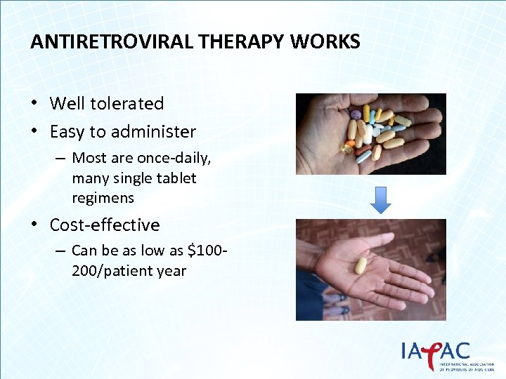 ANTIRETROVIRAL THERAPY WORKS • Well tolerated • Easy to administer – Most are once-daily,