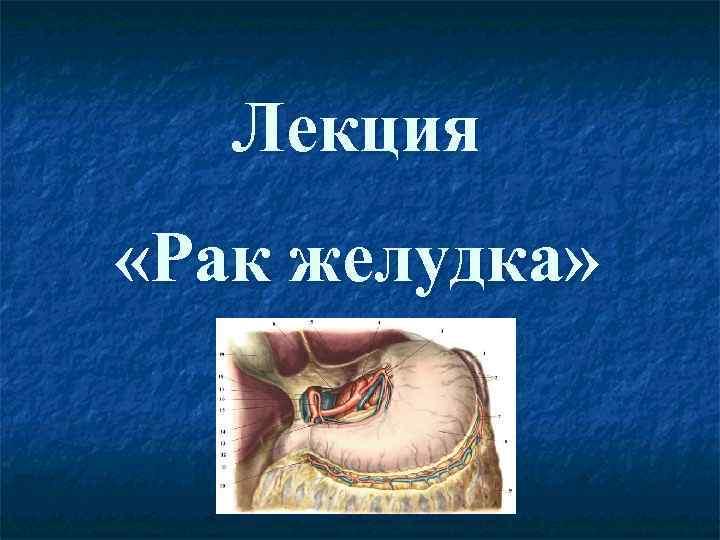 Лекция «Рак желудка»