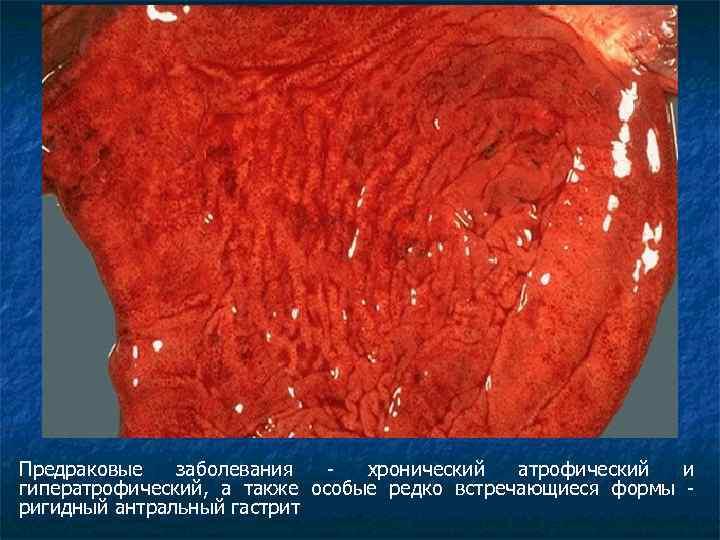 Предраковые заболевания - хронический атрофический и гиператрофический, а также особые редко встречающиеся формы -