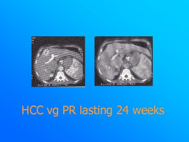 HCC vg PR lasting 24 weeks