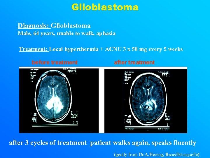 Glioblastoma Diagnosis: Glioblastoma Male, 64 years, unable to walk, aphasia Treatment: Local hyperthermia +