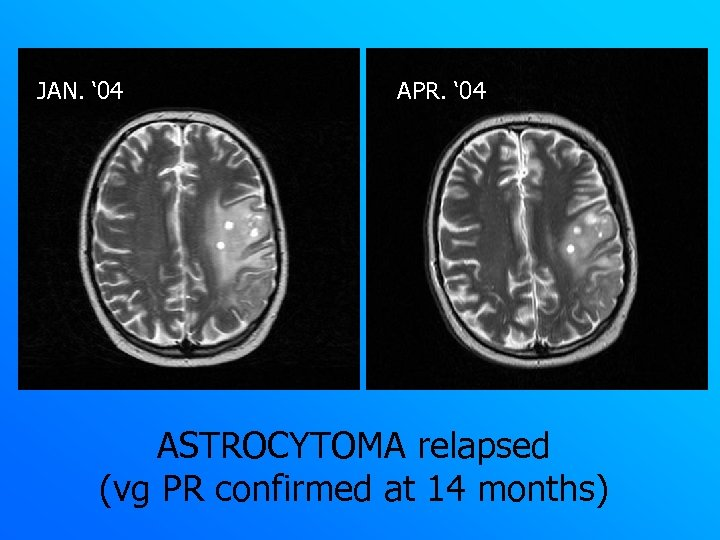 JAN. ' 04 APR. ' 04 ASTROCYTOMA relapsed (vg PR confirmed at 14 months)