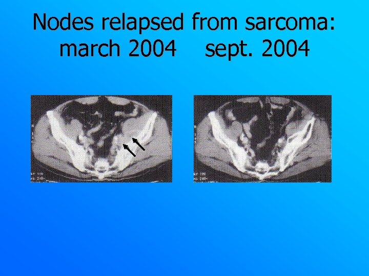Nodes relapsed from sarcoma: march 2004 sept. 2004
