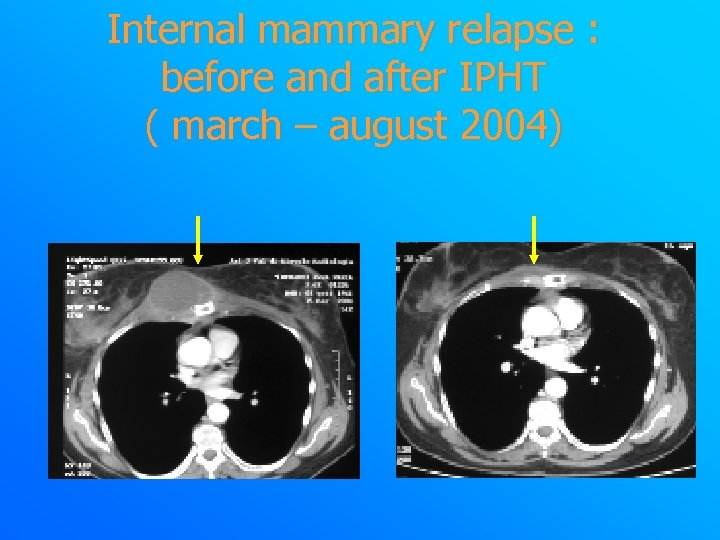 Internal mammary relapse : before and after IPHT ( march – august 2004)