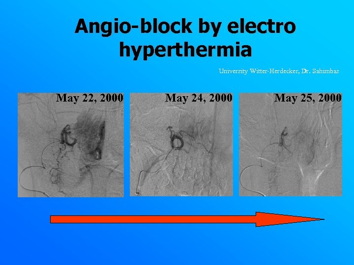 Angio-block by electro hyperthermia University Witter-Herdecker, Dr. Sahimbas May 22, 2000 May 24, 2000