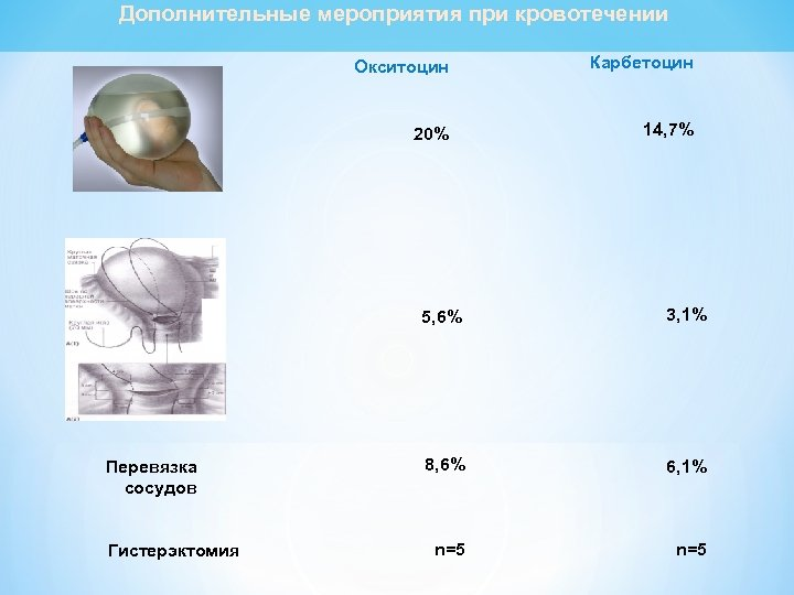 Дополнительные мероприятия при кровотечении Окситоцин Карбетоцин 20% 14, 7% 5, 6% Перевязка сосудов Гистерэктомия