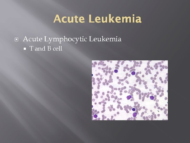 Acute Leukemia Acute Lymphocytic Leukemia T and B cell