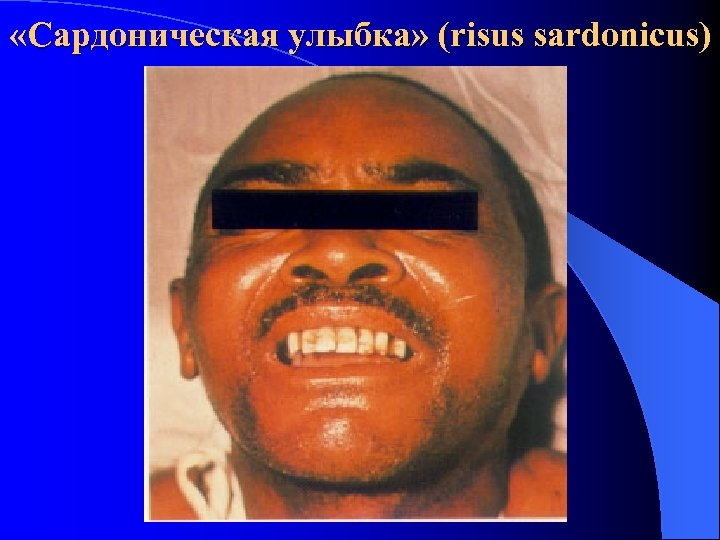 «Сардоническая улыбка» (risus sardonicus)