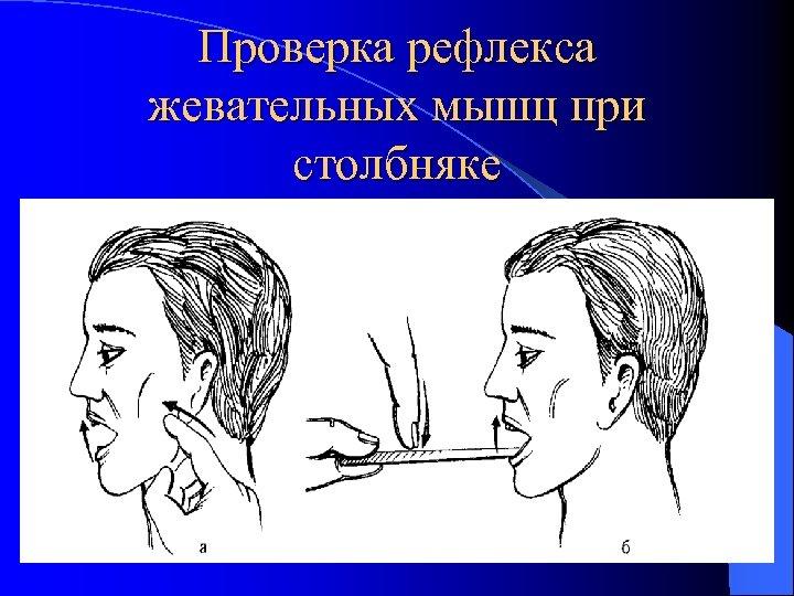 Проверка рефлекса жевательных мышц при столбняке