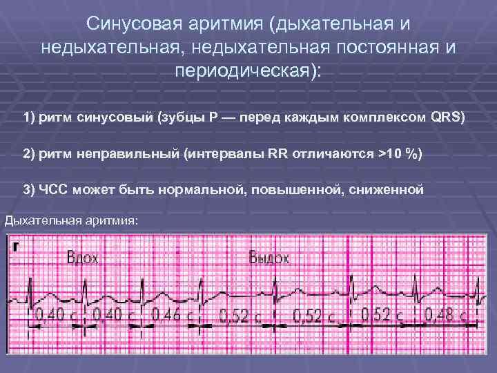 Синусовая аритмия сердца у беременной 51