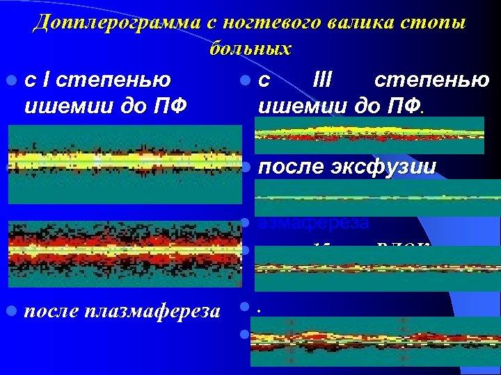 Допплерограмма с ногтевого валика стопы больных с I степенью с III степенью ишемии до