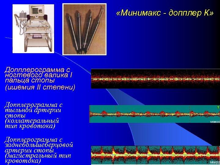 «Минимакс - допплер К» Допплерограмма с ногтевого валика I пальца стопы (ишемия II