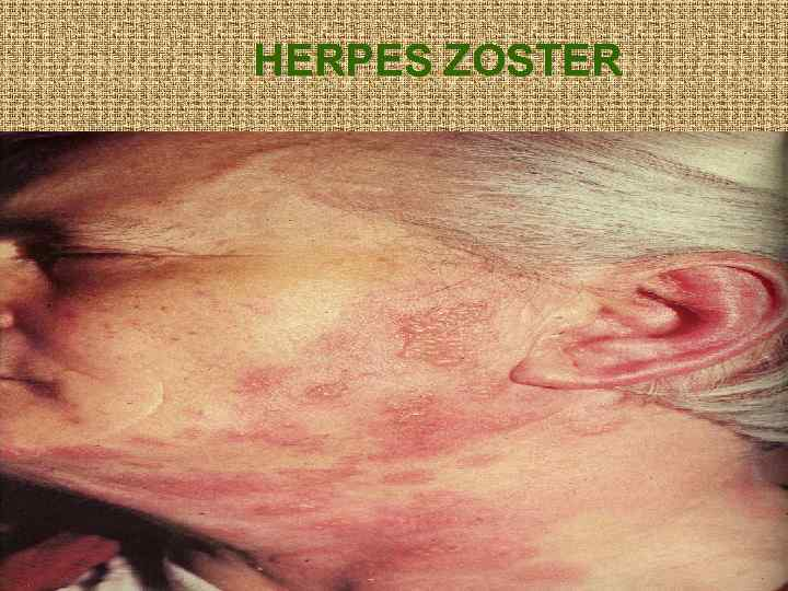 HERPES ZOSTER