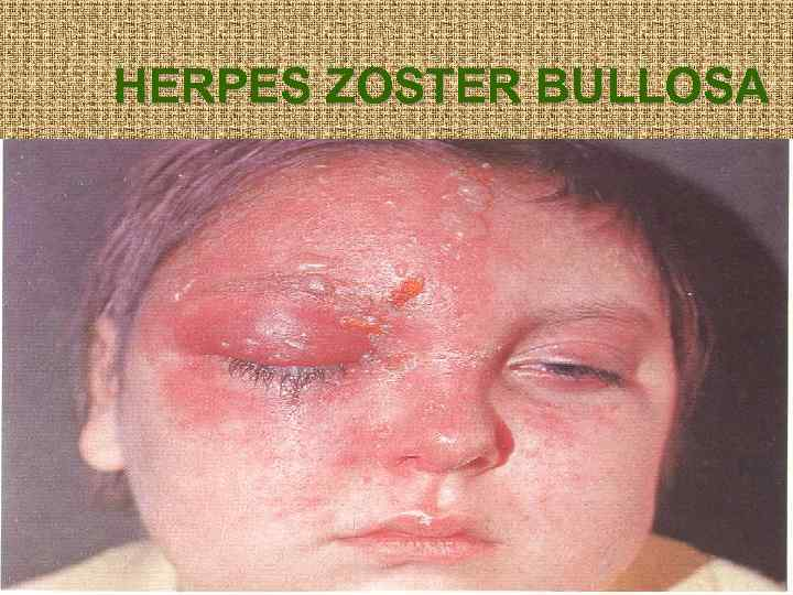 HERPES ZOSTER BULLOSA
