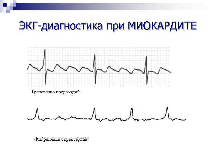 ЭКГ-диагностика при МИОКАРДИТЕ Трепетание предсердий Фибрилляция предсердий