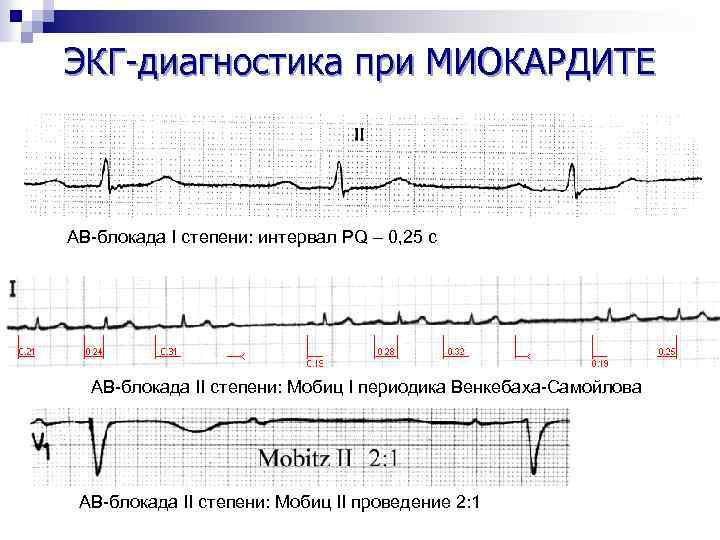 ЭКГ-диагностика при МИОКАРДИТЕ АВ-блокада I степени: интервал PQ – 0, 25 с АВ-блокада II