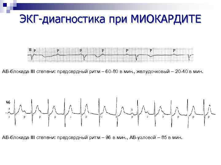 ЭКГ-диагностика при МИОКАРДИТЕ АВ-блокада III степени: предсердный ритм – 60 -80 в мин. ,