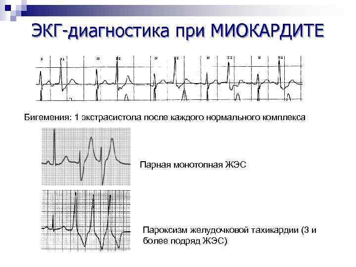 ЭКГ-диагностика при МИОКАРДИТЕ Бигемения: 1 экстрасистола после каждого нормального комплекса Парная монотопная ЖЭС Пароксизм