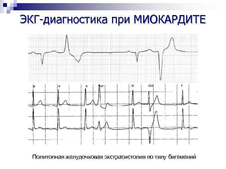 ЭКГ-диагностика при МИОКАРДИТЕ Политопная желудочковая экстрасистолия по типу бигемений