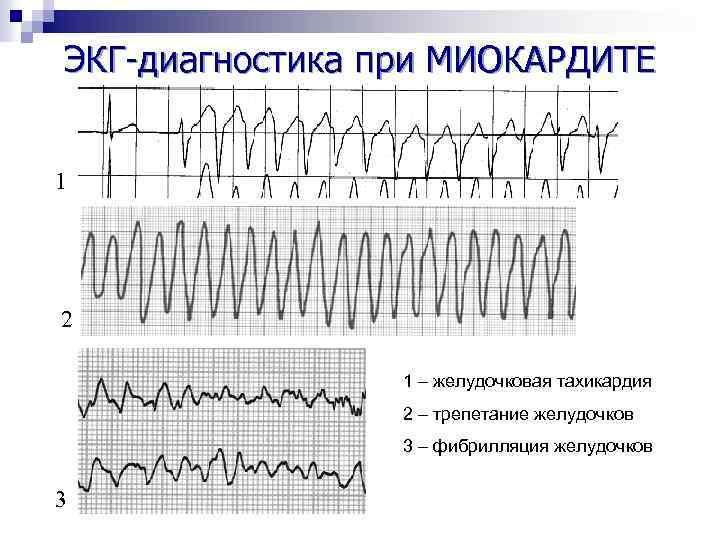 ЭКГ-диагностика при МИОКАРДИТЕ 1 2 1 – желудочковая тахикардия 2 – трепетание желудочков 3