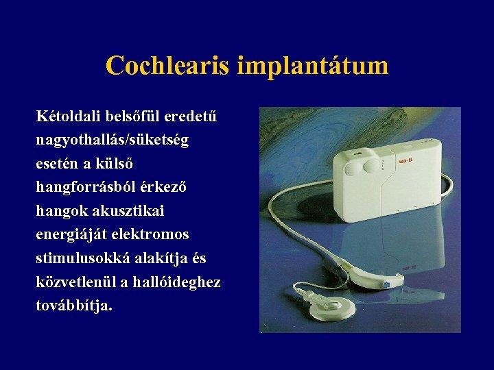 Cochlearis implantátum Kétoldali belsőfül eredetű nagyothallás/süketség esetén a külső hangforrásból érkező hangok akusztikai energiáját