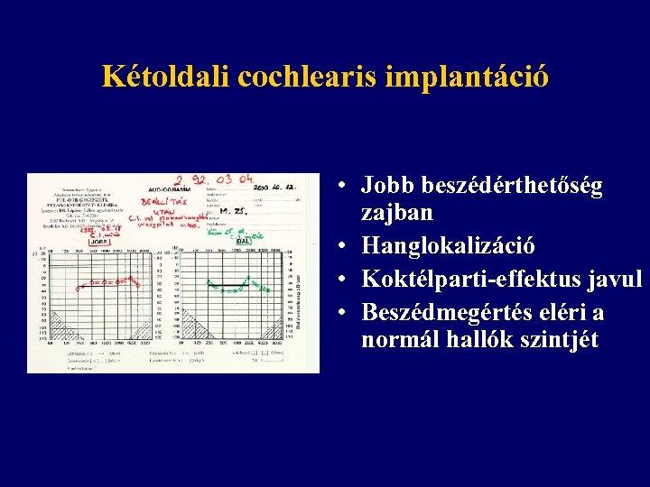 Kétoldali cochlearis implantáció • Jobb beszédérthetőség zajban • Hanglokalizáció • Koktélparti-effektus javul • Beszédmegértés