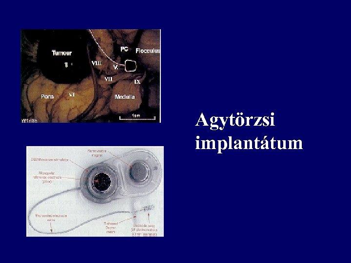 • Agytörzsi implantátum