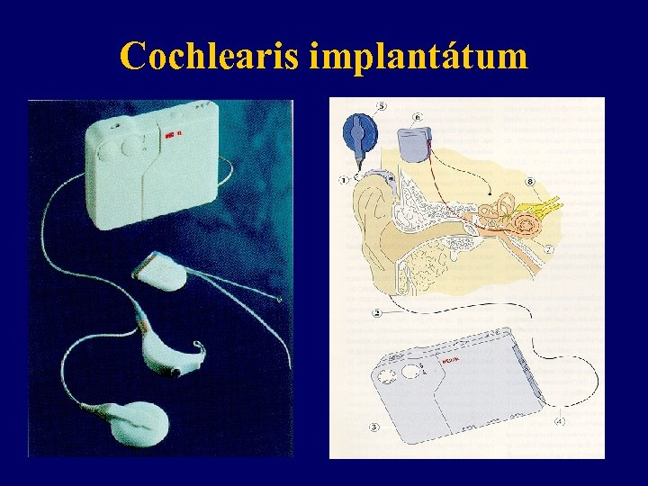 Cochlearis implantátum