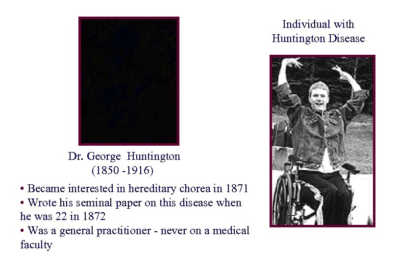Individual with Huntington Disease Dr. George Huntington (1850 -1916) • Became interested in hereditary
