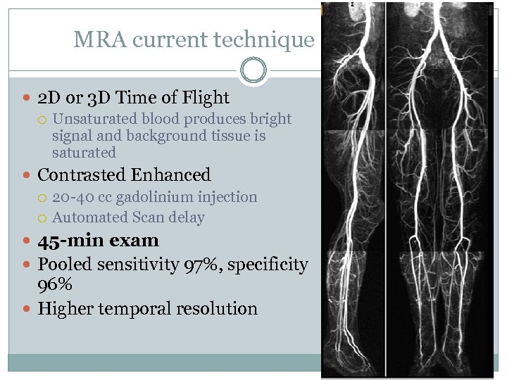 MRA current technique 2 D or 3 D Time of Flight Unsaturated blood produces