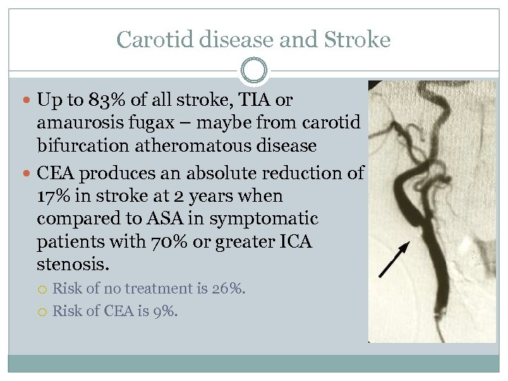 Carotid disease and Stroke Up to 83% of all stroke, TIA or amaurosis fugax