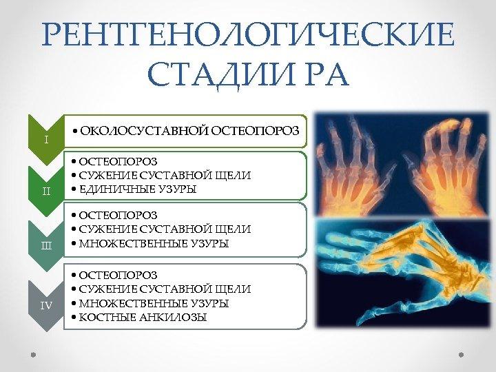 РЕНТГЕНОЛОГИЧЕСКИЕ СТАДИИ РА I • ОКОЛОСУСТАВНОЙ ОСТЕОПОРОЗ II • ОСТЕОПОРОЗ • СУЖЕНИЕ СУСТАВНОЙ ЩЕЛИ