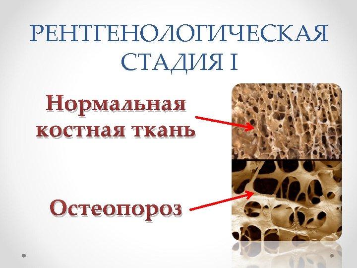 РЕНТГЕНОЛОГИЧЕСКАЯ СТАДИЯ I Нормальная костная ткань Остеопороз