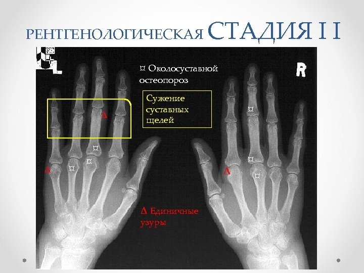 СТАДИЯ I I РЕНТГЕНОЛОГИЧЕСКАЯ ¤ Околосуставной остеопороз ∆ Сужение суставных щелей ¤ ∆ ¤