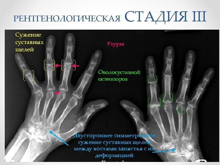 СТАДИЯ III РЕНТГЕНОЛОГИЧЕСКАЯ Сужение суставных щелей Узуры Околосуставной остеопороз Двустороннее симметричное сужение суставных